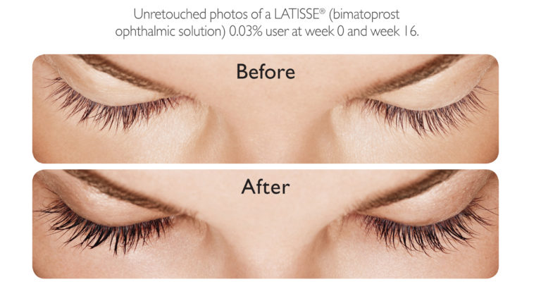 Latisse-Eyelashes-Enhancement-in-Karachi